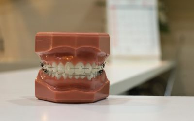The Parents' Crash Course in Wisdom Tooth Extraction